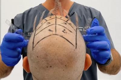 Μεταμόσχευση μαλλιών: Μπορεί να αλλάξει την κακή ψυχολογία;