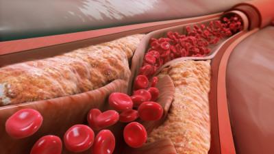 Χοληστερόλη: Πρωτοποριακή «συμμαχία» σε παγκόσμιο επίπεδο μεταξύ Novartis και NHS